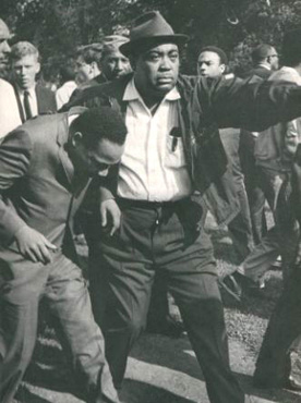Martin Luther King after being hit by a rock during a march through Gage Park in 1966.